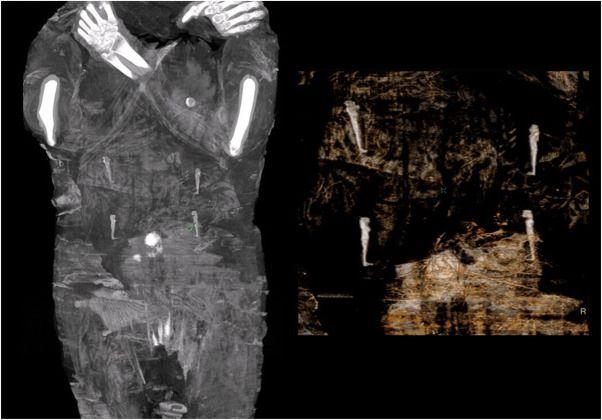 Zdjęcie wnętrza mumii w ciąży